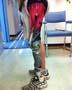Jambe bionique : une prothese de jambe customisee mi  chair mi robot !