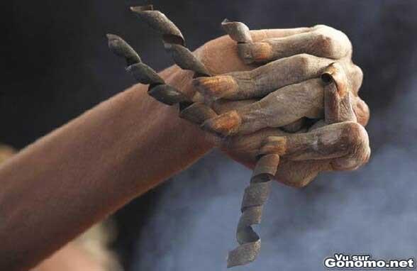 Des ongles tout pourris et boucles. On dirait des meches a spirale pour perceuse ! :p