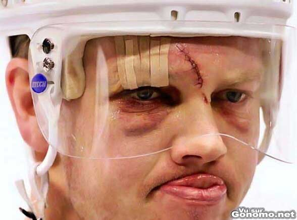Il a bien morfle en jouant au hockey sur glace